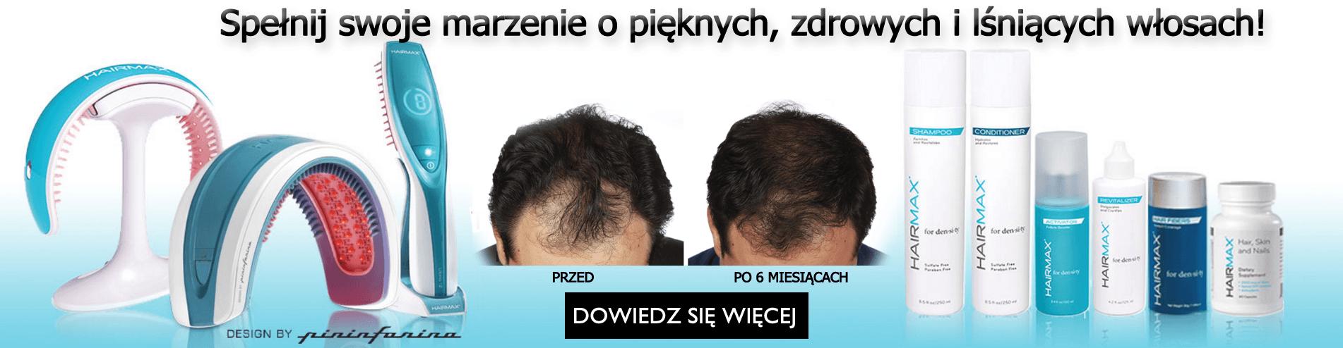 przeszczep włosów bielsko, leczenie łysienia śląsk