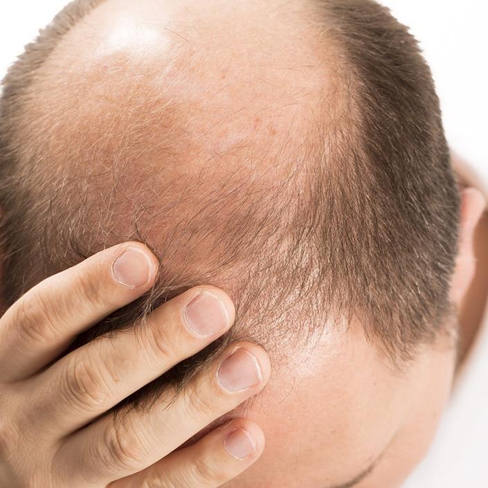wypadanie włosów bielsko