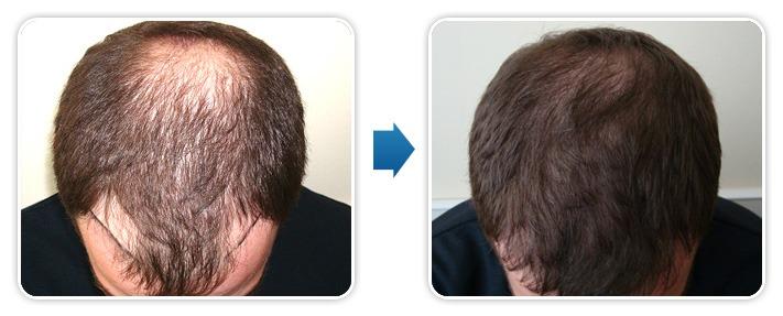 przeszczep włosów Bielsko, przeszczep włosów cena