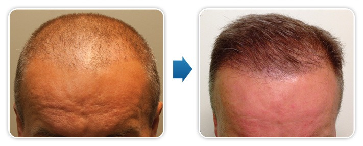 transplantacja włosów Bielsko, przeszczep włosów cena