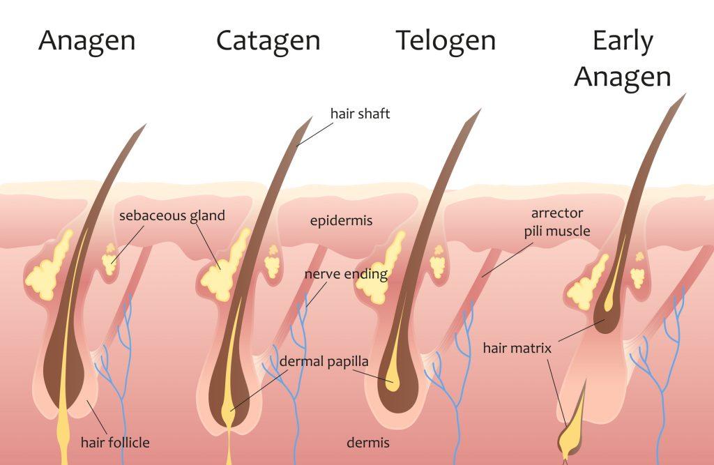 przeszczep włosów kraków, leczenie przedwczesnego łysienia, efekt przeszczepu włosów Kraków