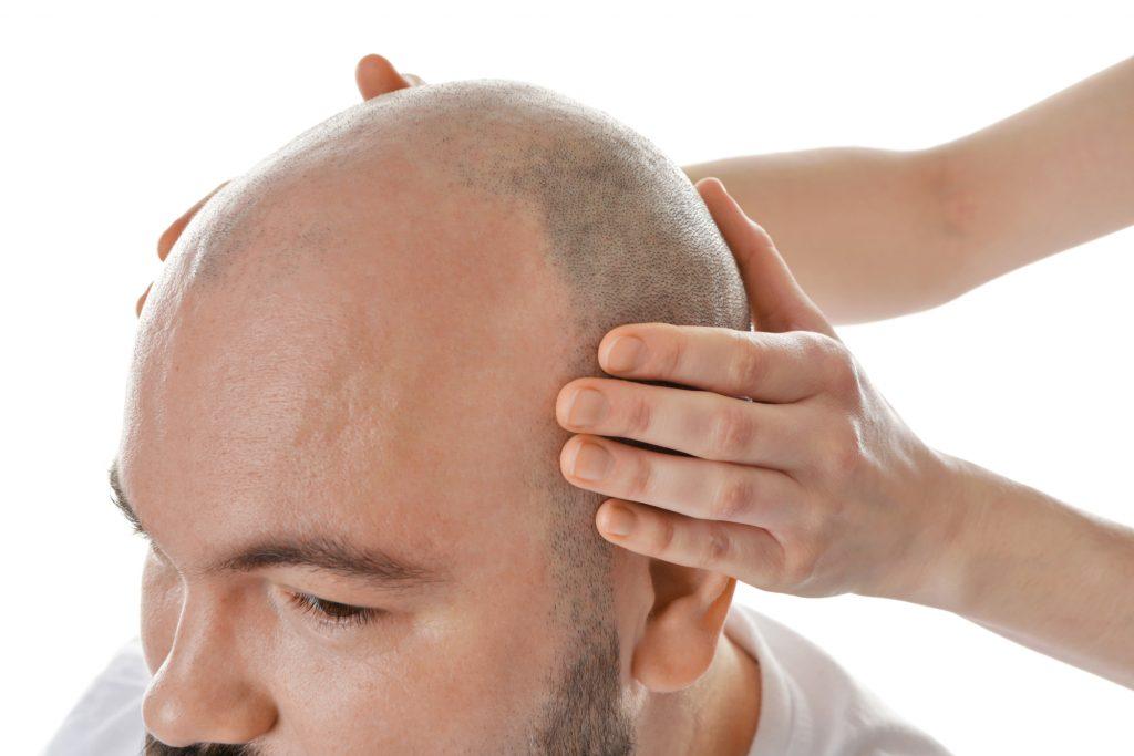 przeszczep włosów cena, leczenie przedwczesnego łysienia