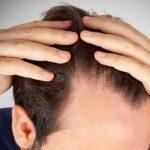 przeszczep włosów bielsko, przeszczep włosów metoda FUE