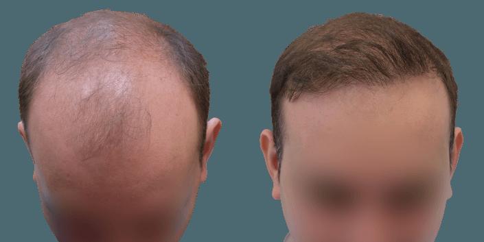 przeszczep włosów Bielsko, przeszczep włosów efekt