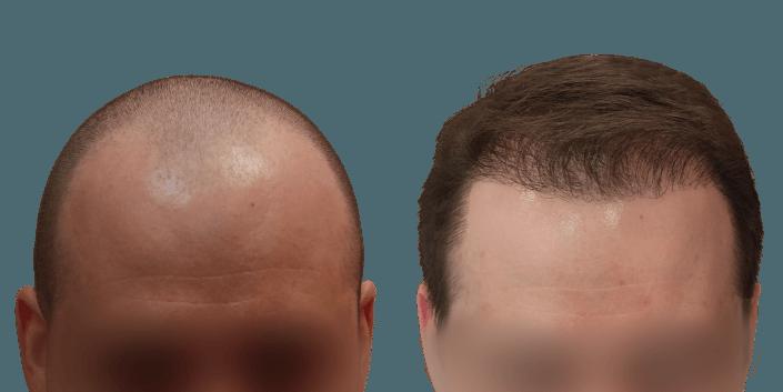 przeszczep włosów śląsk, przeszczep włosów efekt