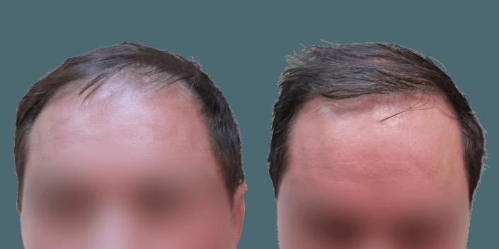 transplantacja włosów Bielsko, przeszczep włosów efekt