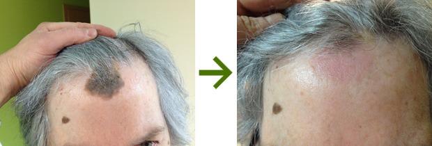 przeszczep włosów cena, leczenie łysienia śląsk