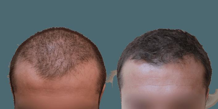 przeszczep włosów Bielsko, przedwczesne łysienie jak leczyć