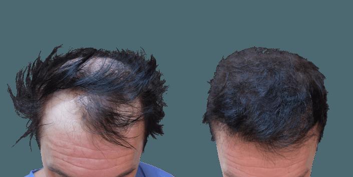 transplantacja włosów śląsk, przeszczep włosów efekt