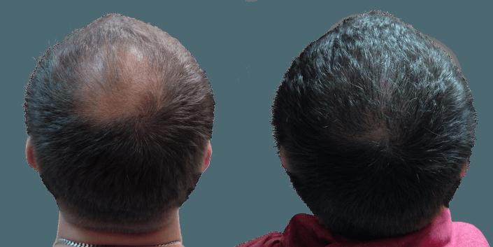 przeszczep włosów Bielsko, cena zabiegu przeszczepu włosów