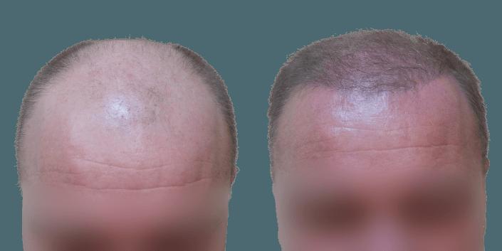 przeszczep włosów śląsk, cena transplantacji włosów Ślask