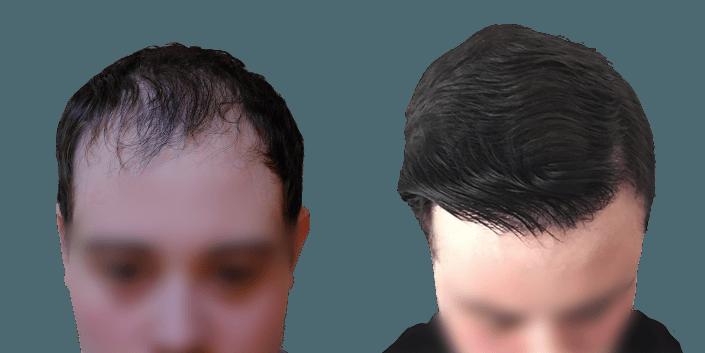 transplantacja włosów śląsk, cena przeszczepu włosów