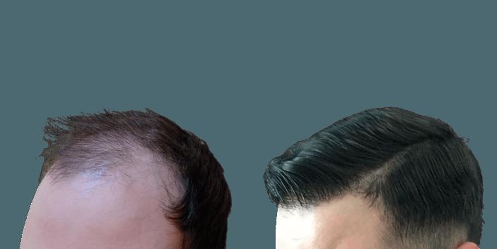 przeszczep włosów śląsk, łysienie androgenowe
