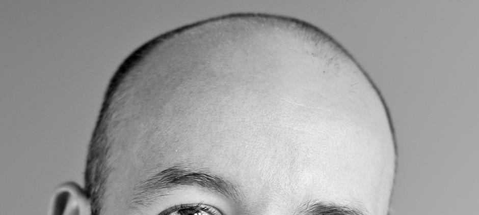 Łysienie androgenowe, przeszczep włosów cena kraków